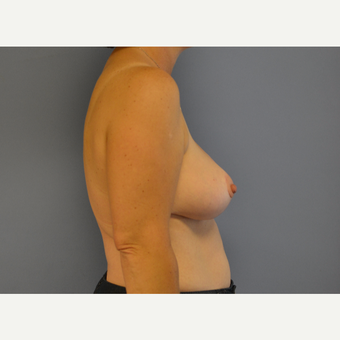 45-54 year old woman treated with Breast Reduction after 3531080