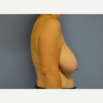 45-54 year old woman treated with Breast Reduction before 3531080