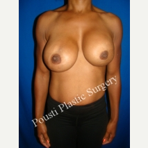 35-44 year old woman treated with Breast Augmentation before 3088436