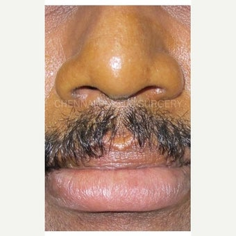 35-44 year old man treated with Lip Reduction before 1664327