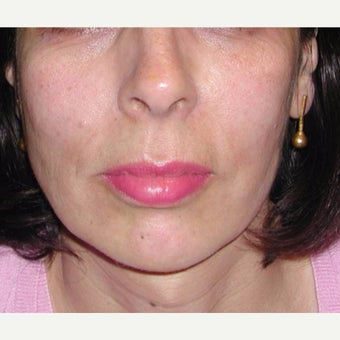 Woman treated with Sculptra after 1999650