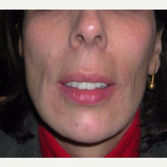 Woman treated with Sculptra before 1999650