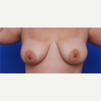 34- year old woman treated with Liposuction  to her Breasts after 3583771