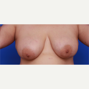 34- year old woman treated with Liposuction  to her Breasts before 3583771