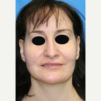 45-54 year old woman treated with Facelift after 3097526
