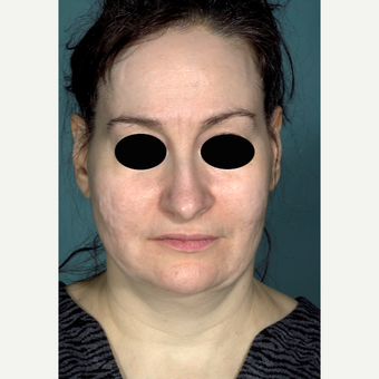 45-54 year old woman treated with Facelift before 3097526