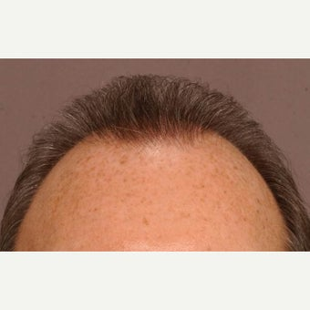 45-54 year old man treated with Hair Transplant after 1647697