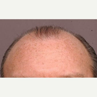 45-54 year old man treated with Hair Transplant before 1647697