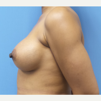 35-44 year old woman treated with Breast Augmentation after 3038383