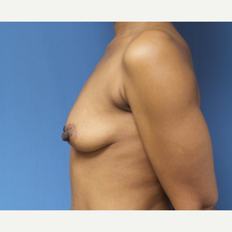35-44 year old woman treated with Breast Augmentation before 3038383