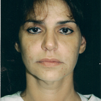 35-44 year old woman treated with Facelift before 3271674