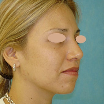 18-24 year old woman treated with Rhinoplasty after 1733365