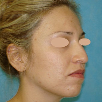 18-24 year old woman treated with Rhinoplasty before 1733365
