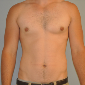 25-34 year old man treated with Male Breast Reduction after 3125488
