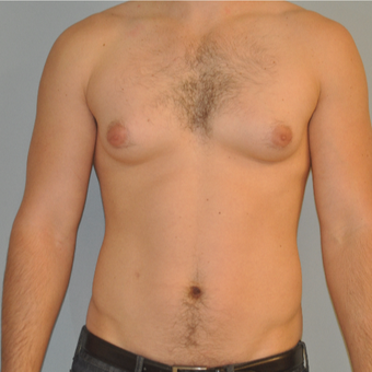 25-34 year old man treated with Male Breast Reduction before 3125488