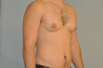 25-34 year old man treated with Male Breast Reduction 3125488