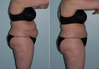 55-64 year old woman treated with CoolSculpting before 2744476