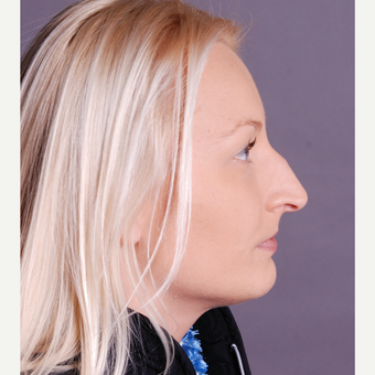 25-34 year old woman treated with Rhinoplasty before 3691923