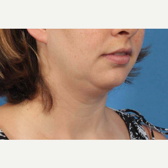 25-34 year old woman treated with Chin Liposuction before 3787634