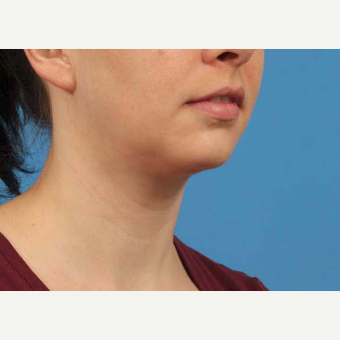 25-34 year old woman treated with Chin Liposuction after 3787634