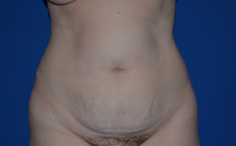 32 Year Old Woman Before and After Abdominoplasty/Tummy Tuck and Liposuction before 1520694
