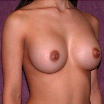 Breast Implants after 3033259