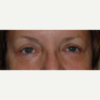 Eyelid Surgery after 3346348