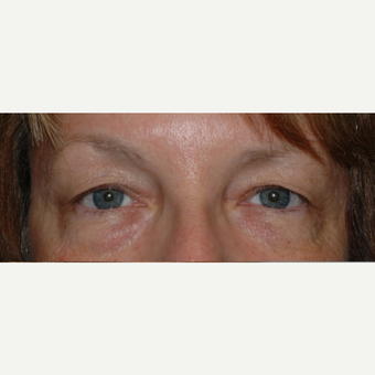 Eyelid Surgery before 3346348