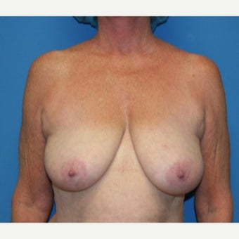 55-64 year old woman treated with Breast Lift with Implants before 2021214