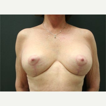 55-64 year old woman treated with Breast Lift with Implants after 2021214