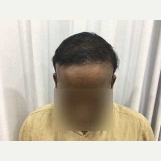 25-34 year old man treated with Hair Transplant