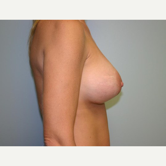 Breast Augmentation after 3444127
