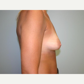 Breast Augmentation before 3444127
