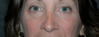 Eye Bags Treatment: Using your own fat to fill in the under eye hollows after 1011270