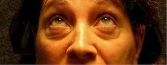 Eye Bags Treatment: Using your own fat to fill in the under eye hollows before 1011270