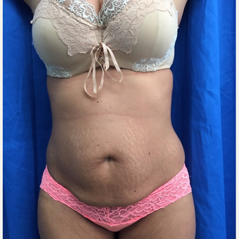 25-34 year old woman treated with Tummy Tuck before 3201252