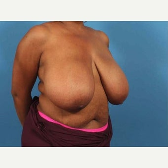 46 year old woman treated with Breast Reduction before 1771074