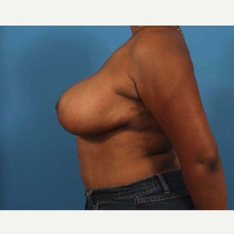 46 year old woman treated with Breast Reduction 1771074