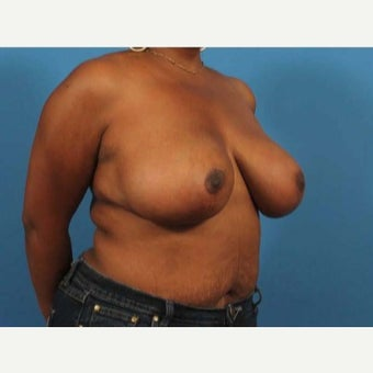 46 year old woman treated with Breast Reduction after 1771074