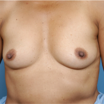 45-54 year old woman treated with Breast Implants before 3387804
