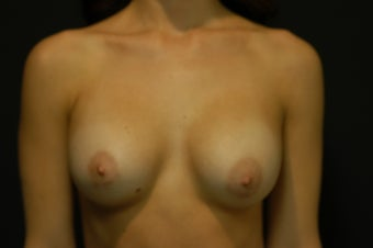 28-year old female, Saline Breast Implant Removal. before 1046086