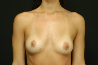 28-year old female, Saline Breast Implant Removal. after 1046086