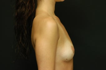 28-year old female, Saline Breast Implant Removal. 1046086