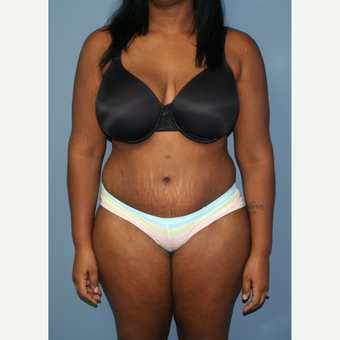 25-34 year old woman treated with Tummy Tuck after 3558457