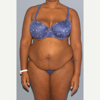25-34 year old woman treated with Tummy Tuck before 3558457