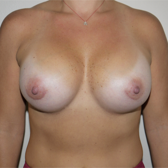 35-44 year old woman treated with Breast Implant Revision after 3692308