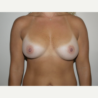 35-44 year old woman treated with Breast Implant Revision before 3692308