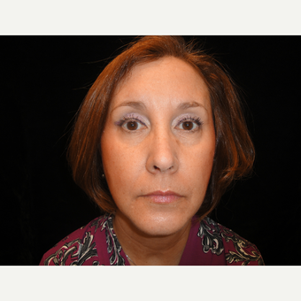 45-54 year old woman treated with Eyelid Surgery after 3823341