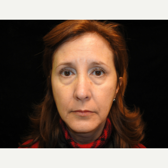 45-54 year old woman treated with Eyelid Surgery before 3823341