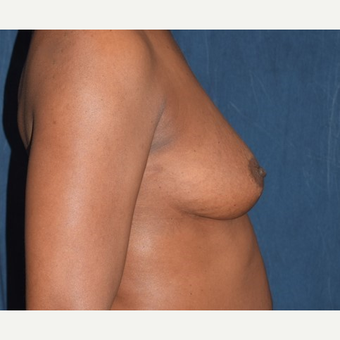 35-44 year old woman treated with Breast Augmentation before 2986000